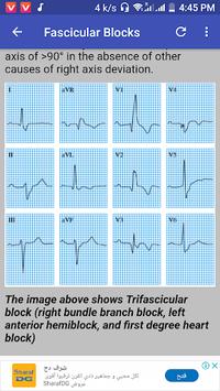 Clinical ECG Guide. APK screenshot 1
