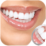 Whiten Teeth Instantly for pc icon